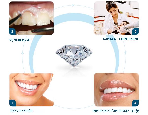 Đính đá trên răng tỏa sáng nụ cười xinh