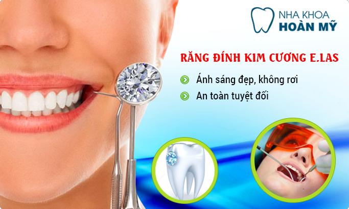 Mốt làm đẹp răng bằng đính kim cương