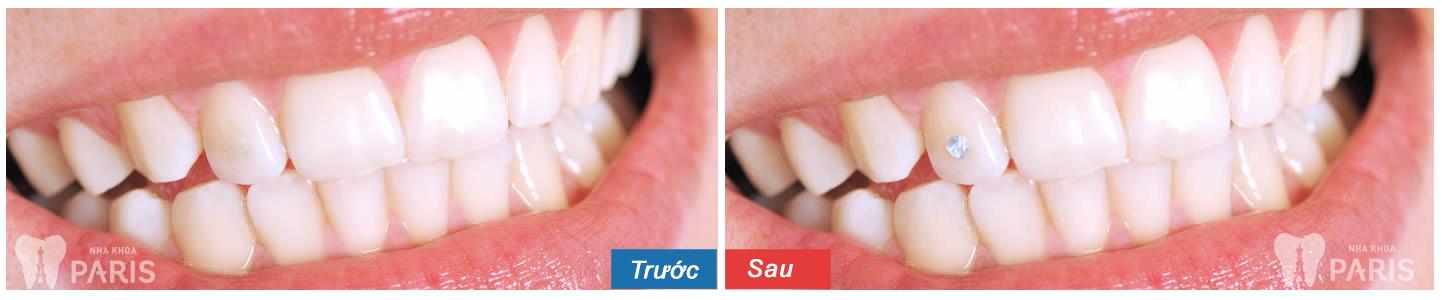 Hình ảnh răng đính đá, Kim Cương trước - sau tại Nha Khoa Paris 2