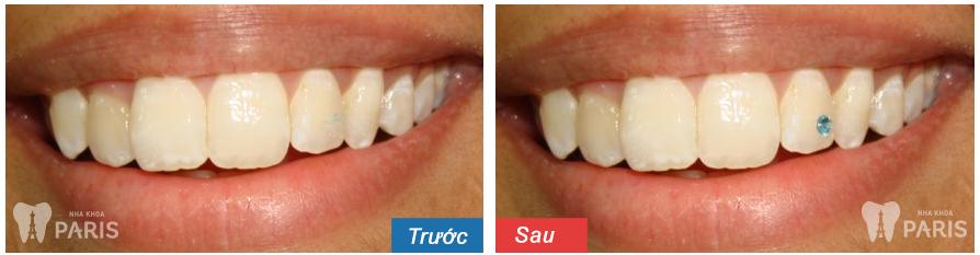 Hình ảnh răng đính đá, Kim Cương trước - sau tại Nha Khoa Paris 4