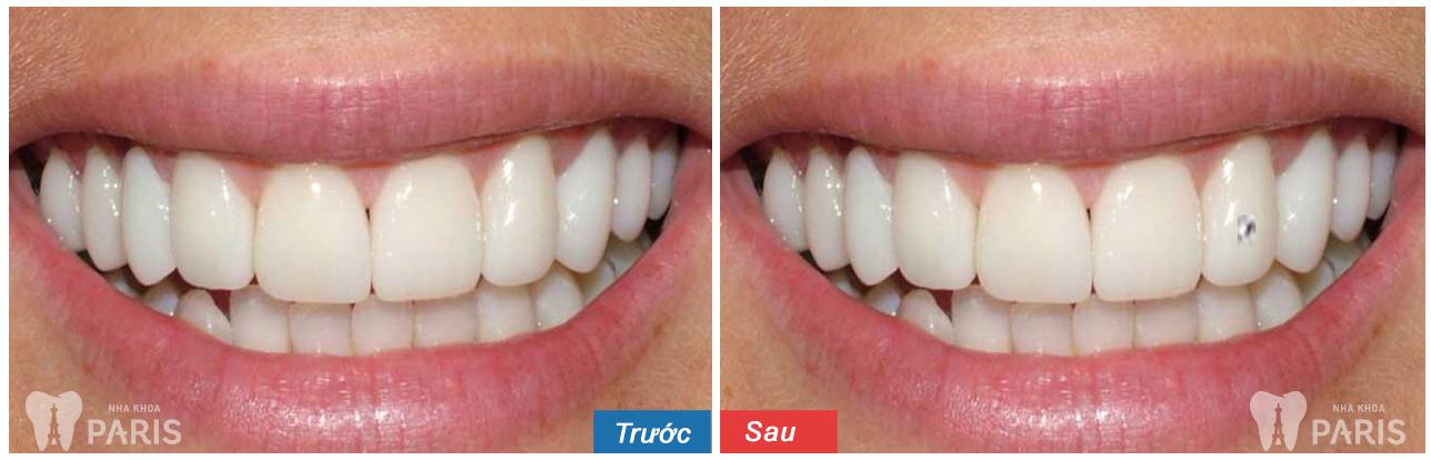 Hình ảnh răng đính đá, Kim Cương trước - sau tại Nha Khoa Paris 3