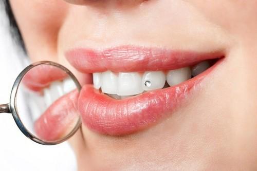 Lưu ý khi đính kim cương vào răng