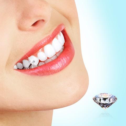 Giải đáp thắc măc: Răng sau khi bọc sứ có thể đính đá không? 1