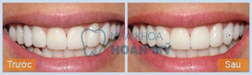 Quy trình đính đá vào răng tại nha khoa Hoàn Mỹ