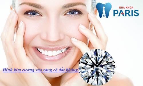 đính kim cương vào răng có đắt không