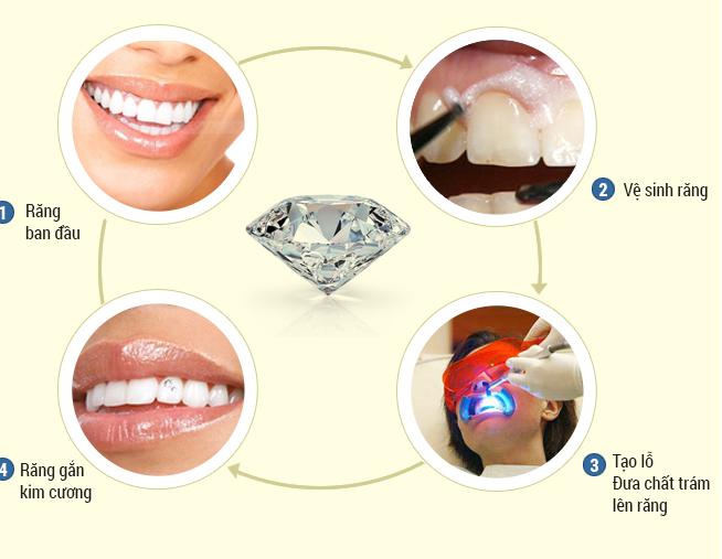 Có hay không những tác hại khi đính đá lên răng?