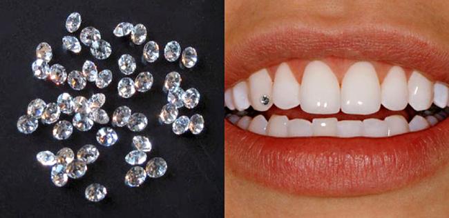Con trai đính đá ở răng có đẹp không?1