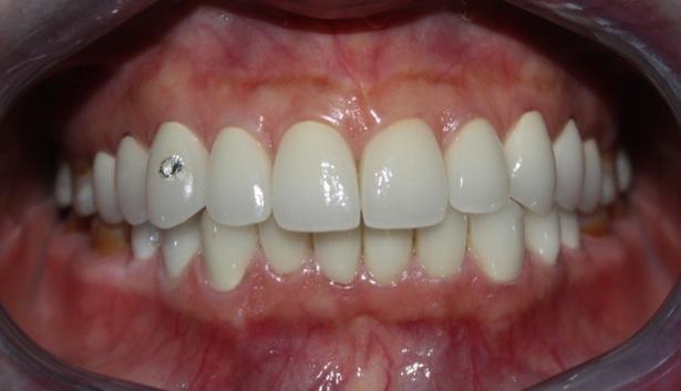 Những kim nghiệm chăm sóc răng sau khi đính đá