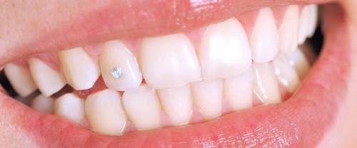 Đính đá vào răng có hại không? Tác hại đính đá răng kỹ thuật cũ 2
