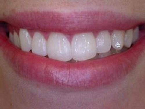 Đính đá lên răng bằng keo có bền chắc hay không?