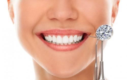 Có nên làm đẹp cho răng bằng cách đính đá
