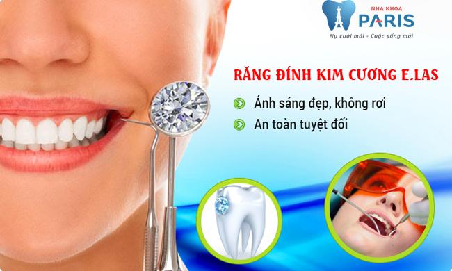 Sử dụng công nghệ elas trong đính đá vào răng