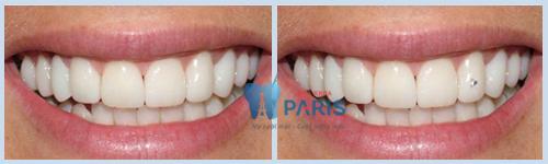 Kỹ thuật đính đá lên răng có hại không - Giải đáp từ chuyên gia 2