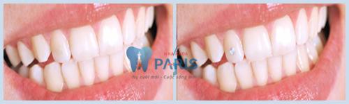 Làm răng thẩm mỹ phương pháp đính đá vào răng 4
