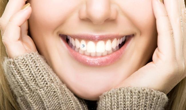 Làm răng thẩm mỹ bằng đính đá vào răng