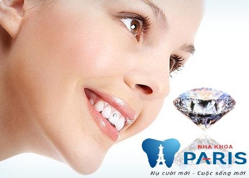 Chăm sóc răng đính đá như thế nào là đúng cách tại Nha Khoa Paris