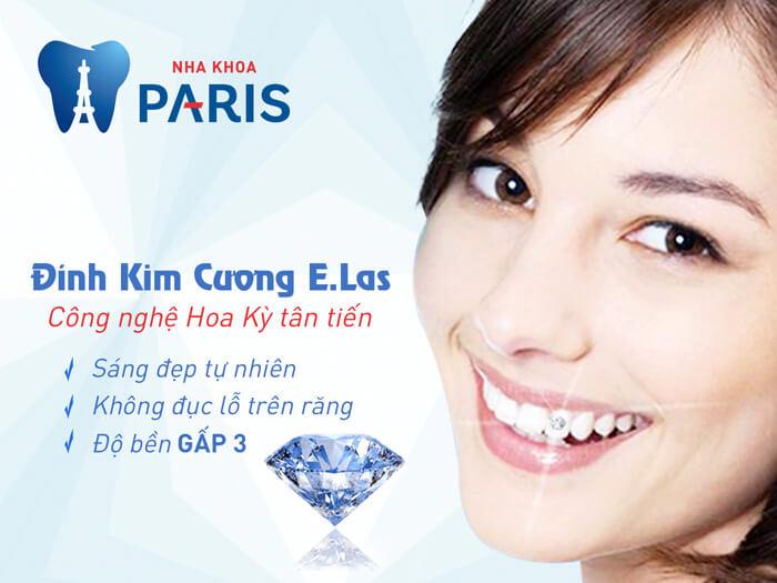 Đá đính răng đảm bảo bền đẹp với công nghệ E.Las tại Nha Khoa Paris