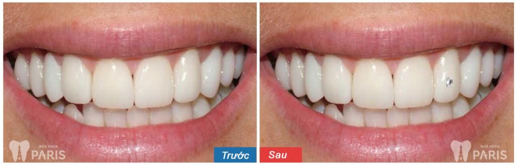 Răng khểnh đính đá có đảm bảo SÁNG ĐẸP và BỀN hay không? 3