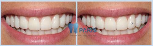 Cách gắn đá vào răng đảm bảo AN TOÀN - BỀN - ĐẸP mới nhất 5