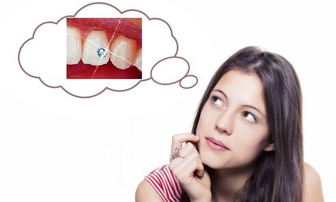 Thắc mắc có nên đính kim cương vào răng không?【Giải Đáp】1