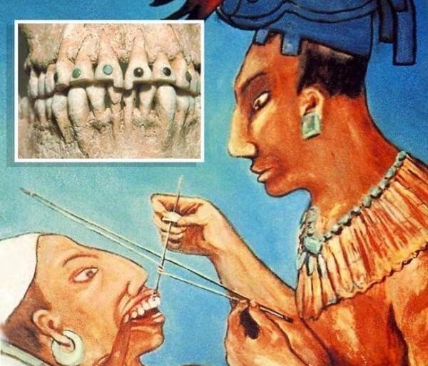 Đính đá vào răng có đau không với công nghệ mới E.LAS?【Giải Đáp】1