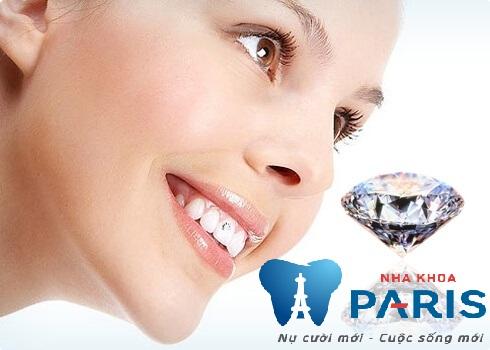 Tại sao nên chọn công nghệ đính đá lên răng E.Las? 3