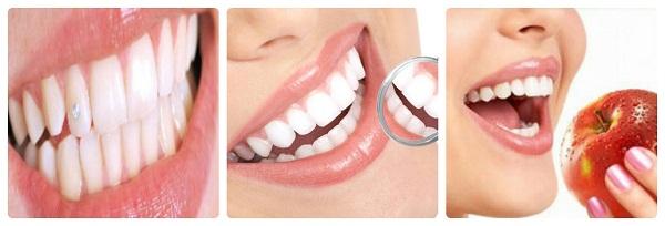 Sức hút trào lưu đính kim cương vào răng khểnh HOT nhất 2017 2