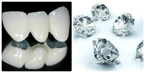 Đính đá vào răng sứ có được không? – Bác sĩ tư vấn 1