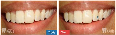 Cách đính đá vào răng bằng công nghệ E. Las răng Sáng ĐẸP nổi bật 5