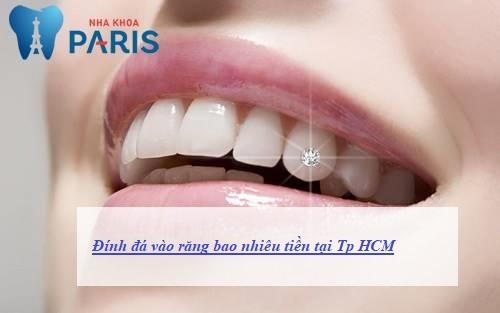 Đính đá vào răng bao nhiêu tiền tại TPHCM