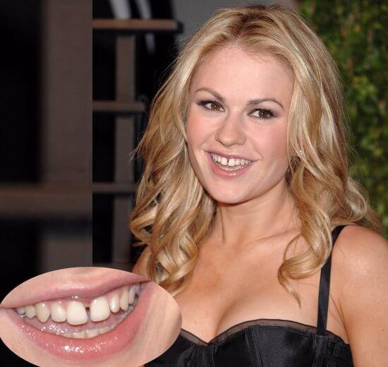 """""""Ngỡ Ngàng"""" với những Sao sở hữu hàm răng xấu nhất thế giới 8"""