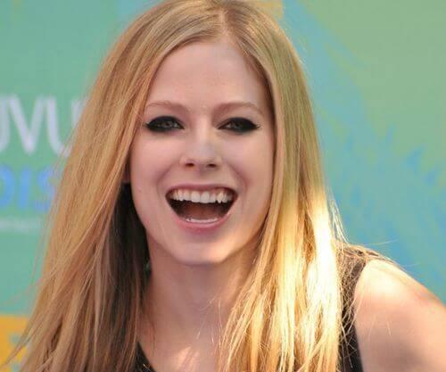 """""""Ngỡ Ngàng"""" với những Sao sở hữu hàm răng xấu nhất thế giới 6"""