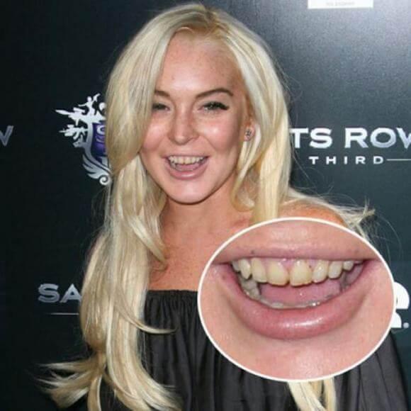 """""""Ngỡ Ngàng"""" với những Sao sở hữu hàm răng xấu nhất thế giới 11"""