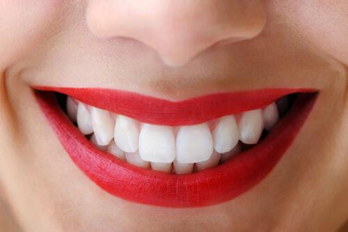 5 BÍ QUYẾT giúp bạn sở hữu một hàm răng đẹp HOÀN HẢO 1