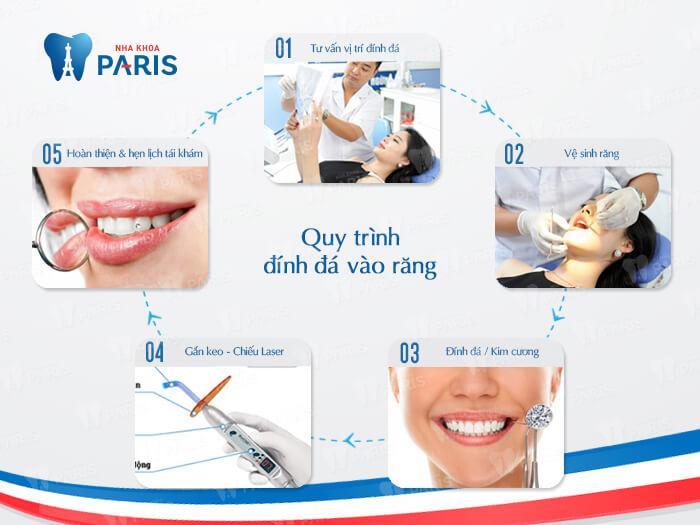 Cách đính đá vào răng bằng công nghệ E. Las răng Sáng ĐẸP nổi bật 2