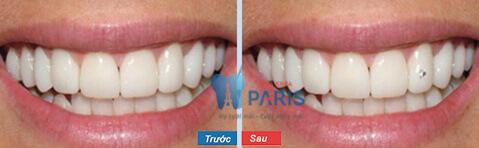 Đính đá vào răng có làm mòn men răng không?【BS Tư Vấn】2