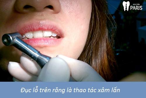 """Đính kim cương trên răng với 4 lưu ý đảm bảo """"Thẩm Mỹ Bền Đẹp"""" 3"""