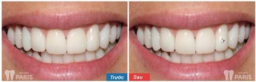 răng sau khi bọc sứ có thể đính đá không