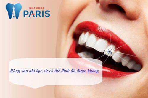 răng sau khi bọc sứ có thể đính đá không 1