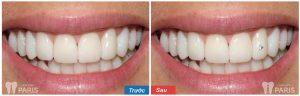 Dùng keo gì gắn đá vào răng đảm bảo BỀN CHẮC- AN TOÀN 100% 3