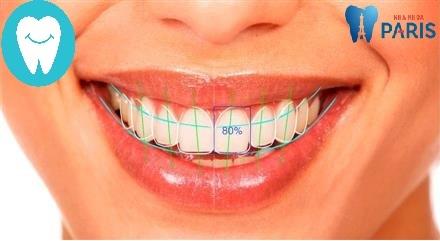 5 BÍ QUYẾT giúp bạn sở hữu một hàm răng đẹp HOÀN HẢO 6