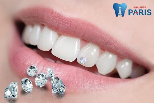 5 BÍ QUYẾT giúp bạn sở hữu một hàm răng đẹp HOÀN HẢO 2