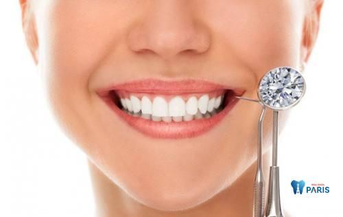 Bác sỹ tư vấn: CÓ NÊN đính đá vào răng không? 1