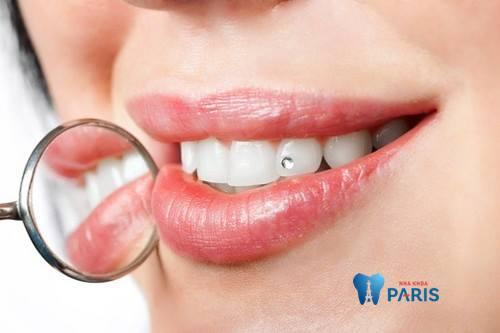 đính đá vào răng có đau không?