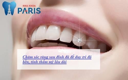 Hướng dẫn chăm sóc răng sau khi đính đá ĐÚNG cách - Đẹp Bền Lâu