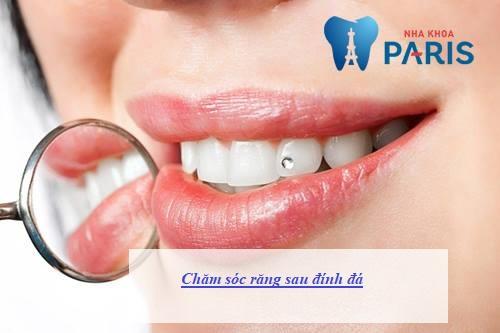 Hướng dẫn chăm sóc răng sau khi đính đá ĐÚNG cách - Đẹp Bền Lâu 3