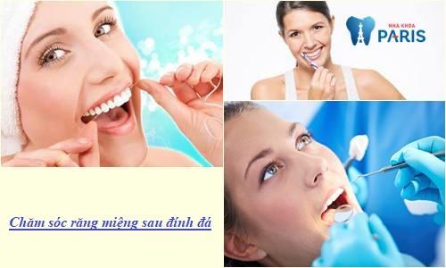 Hướng dẫn chăm sóc răng sau khi đính đá ĐÚNG cách - Đẹp Bền Lâu 1