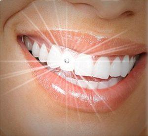 Đá đính răng mua ở đâu RẺ đảm bảo chất lượng TUYỆT ĐỐI? 1