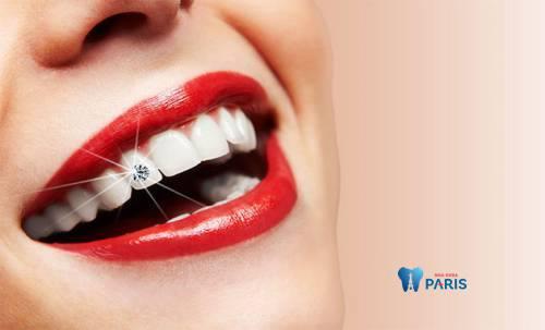 có nên đính kim cương vào răng không1
