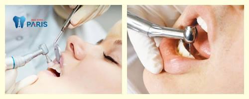 Bác sỹ trả lời: Đính đá vào răng có mấy cách thực hiện? 2